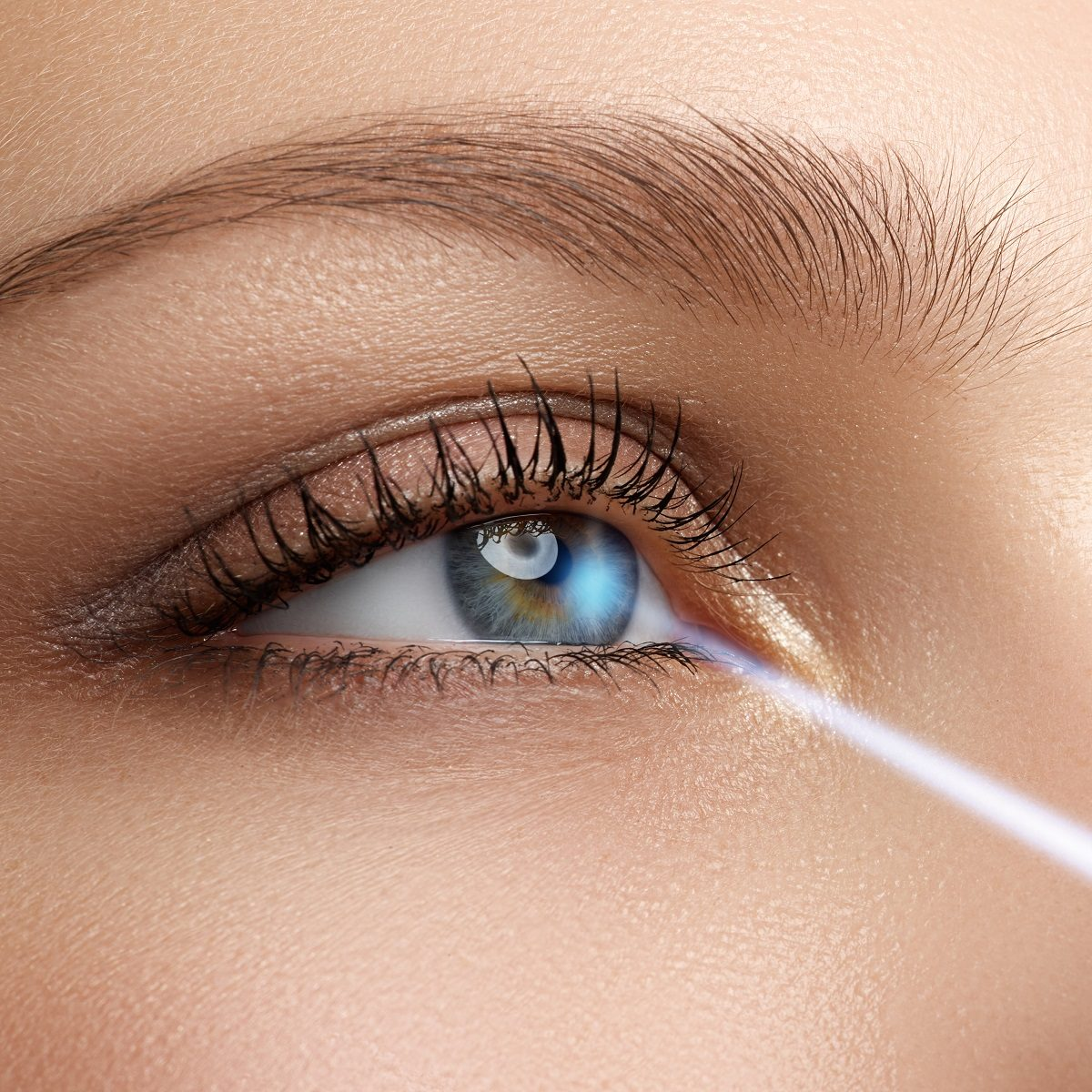 Comfortable LASIK procedure in La Jolla